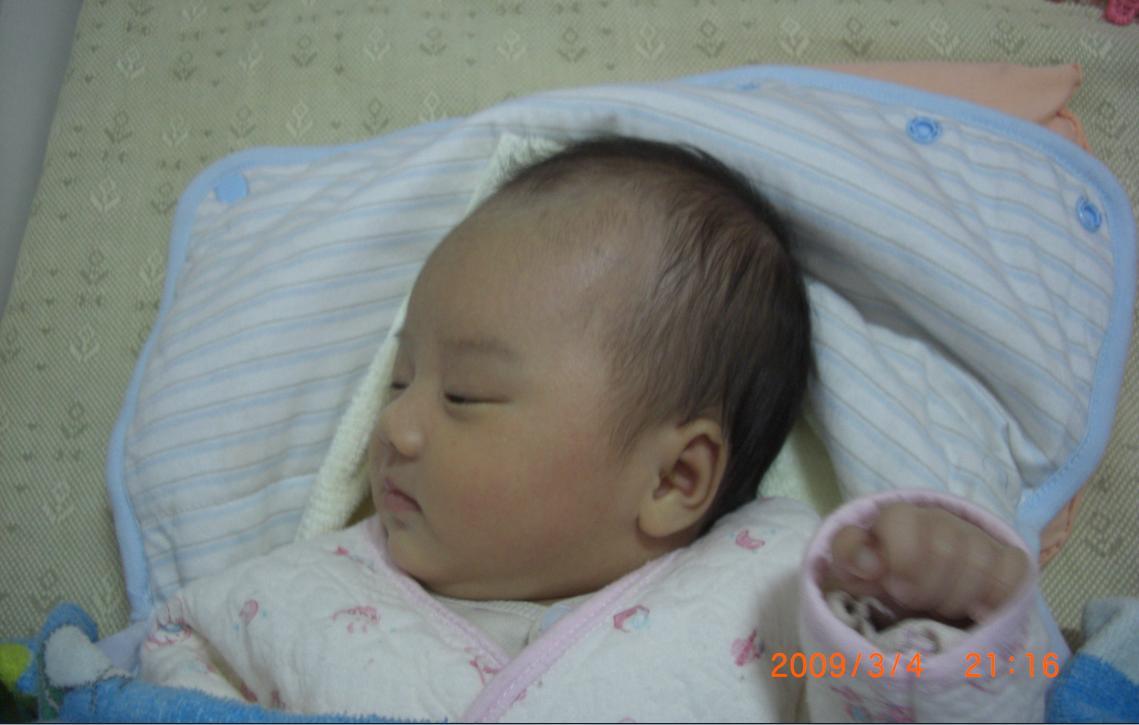 婴儿头型正常图_幼儿喂养一朋友说宝宝的头型看着不正常各位